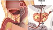 El cáncer silencioso, el cáncer de próstata