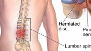 Dolor de espalda, puede ser fisura, hernia o protusión